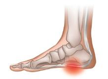 pieds douleurs fasciite plantaire epine lenoir personnes âgées seniors senup talon